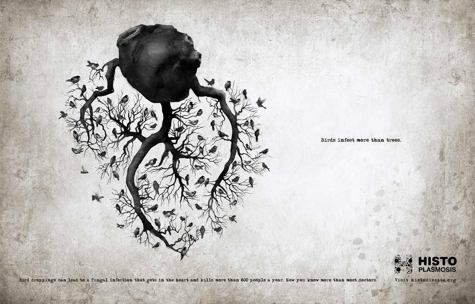 Histoplasmosis-Heart