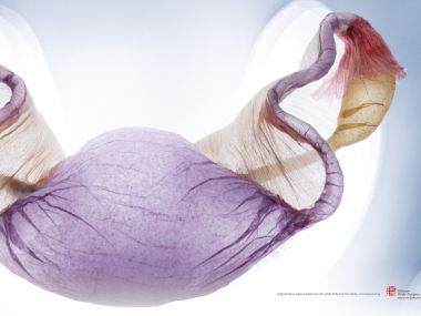 polyscene – Tissue Paper Sculpture -Gynaecological